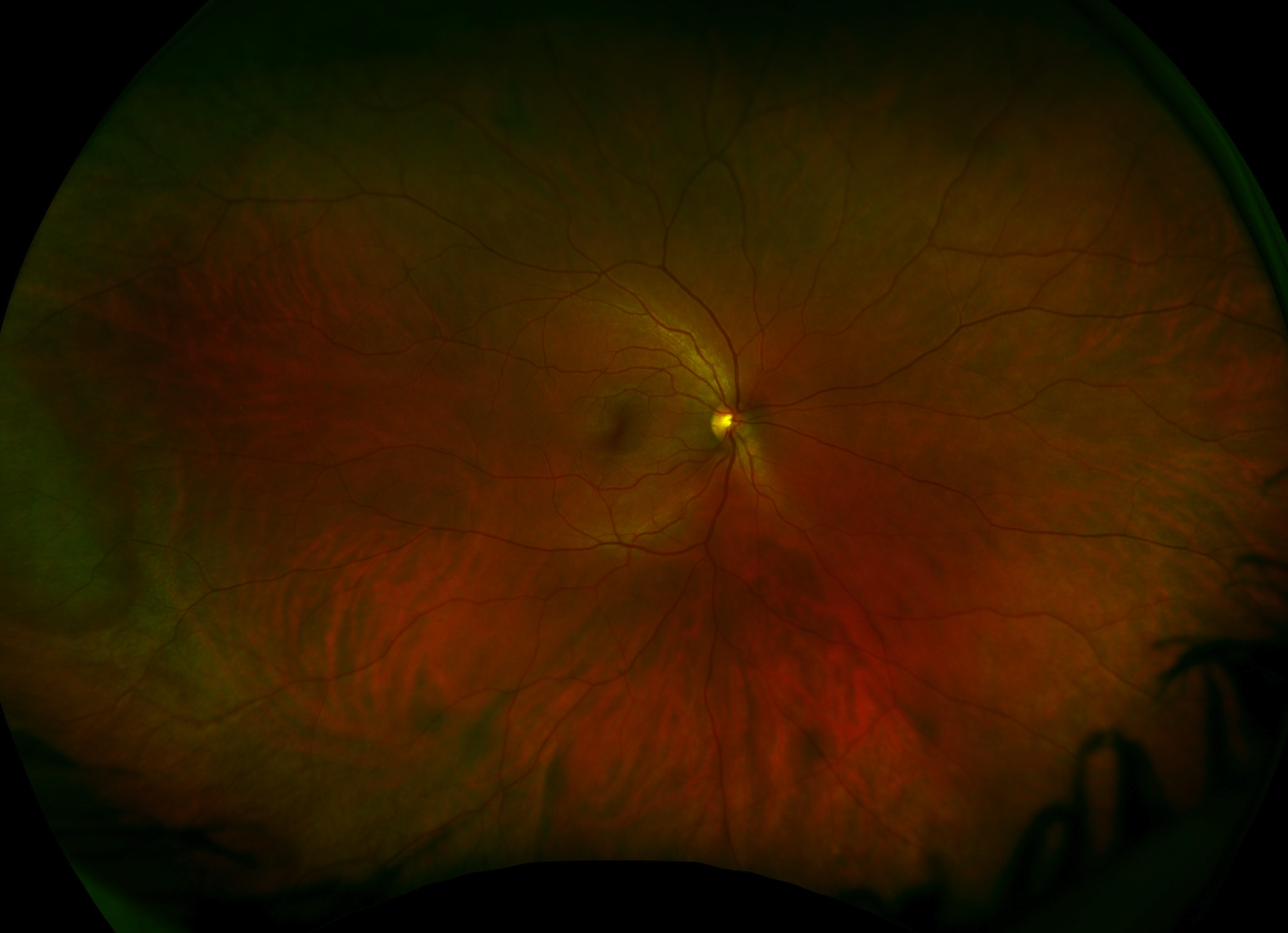 We Have An Awesome New Machine Healthy Eyes